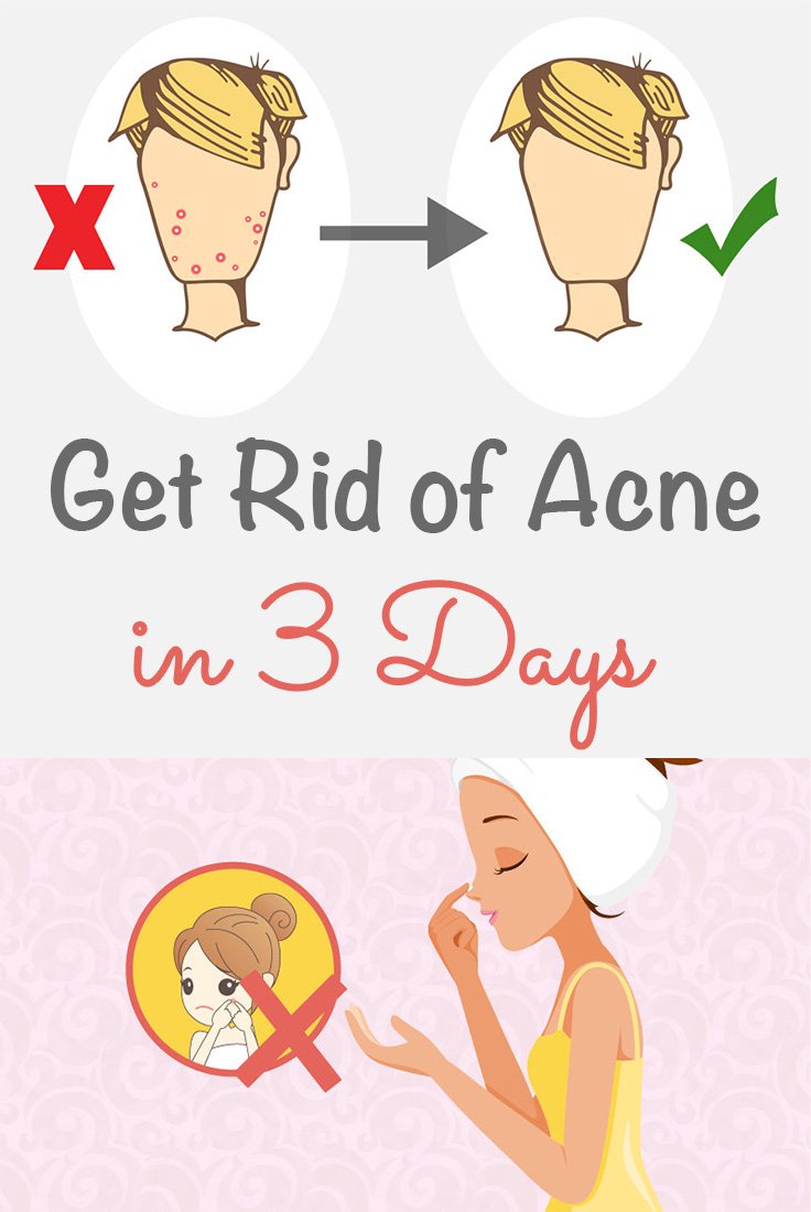 How To Get Rid Of Acne Naturally In 3 Days