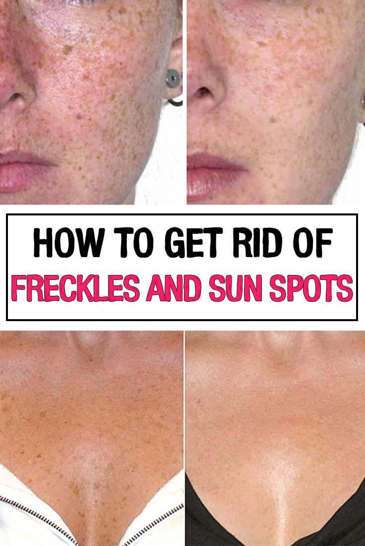 How To Get Rid Of Freckles And Sun Spots Iwomenhacks