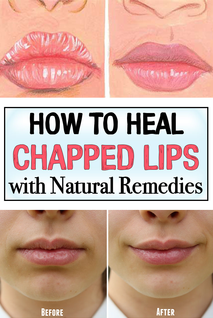 How To Heal Chapped Lips With Natural Remedies Iwomenhacks