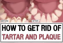 Natural Way To Get Rid Of Plaque On Teeth