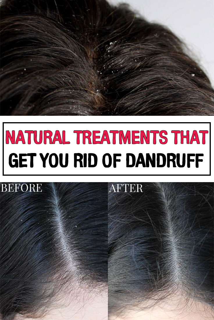 how to get rid of dandruff in natural hair