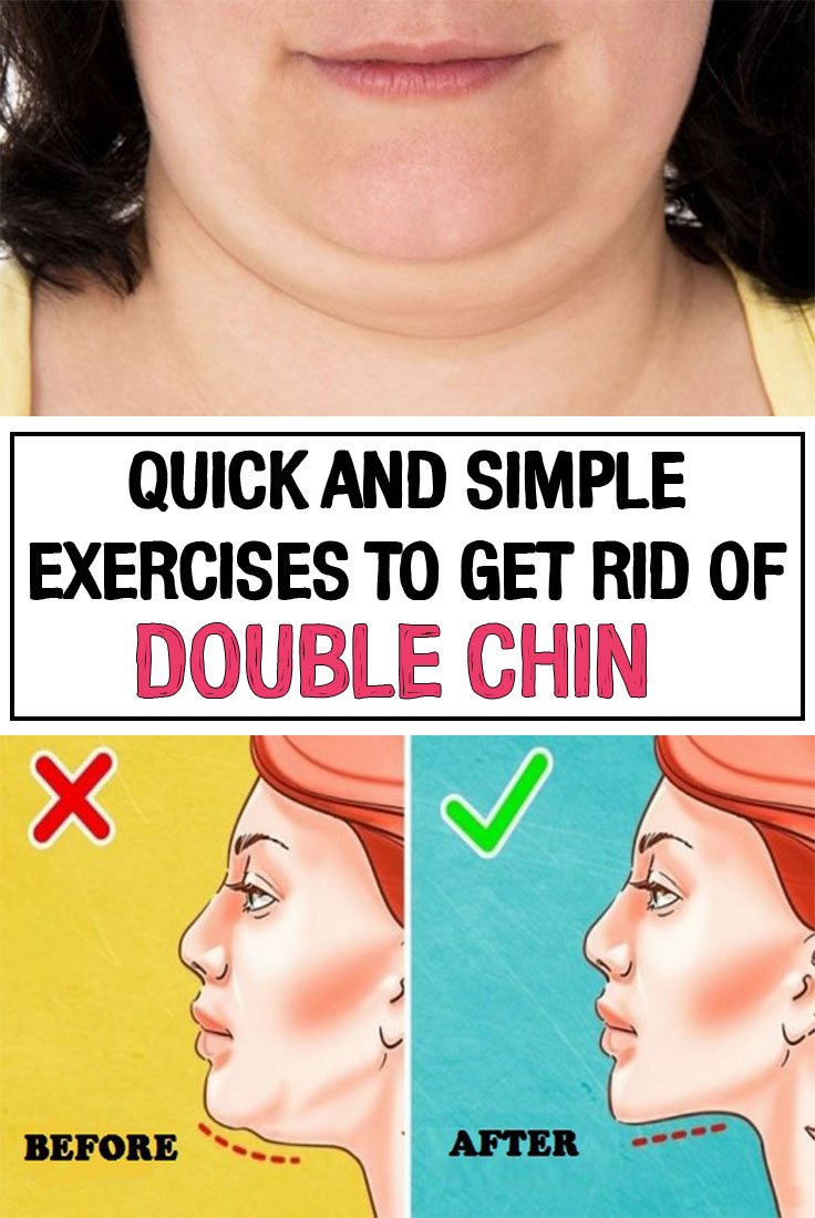 Communication on this topic: Exercises to Get Rid of Double Chin, exercises-to-get-rid-of-double-chin/